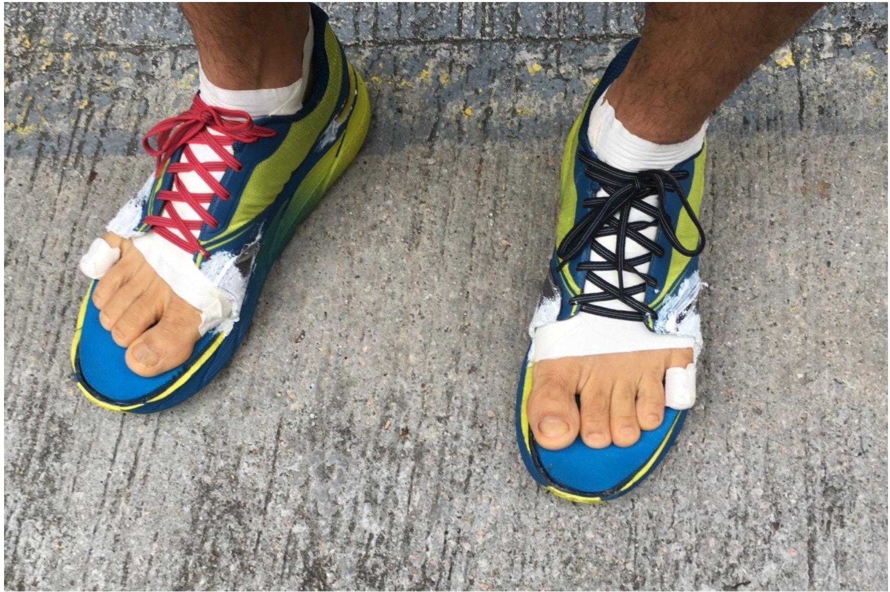 怎么预防和应对马拉松跑者赛后的黑指甲问题